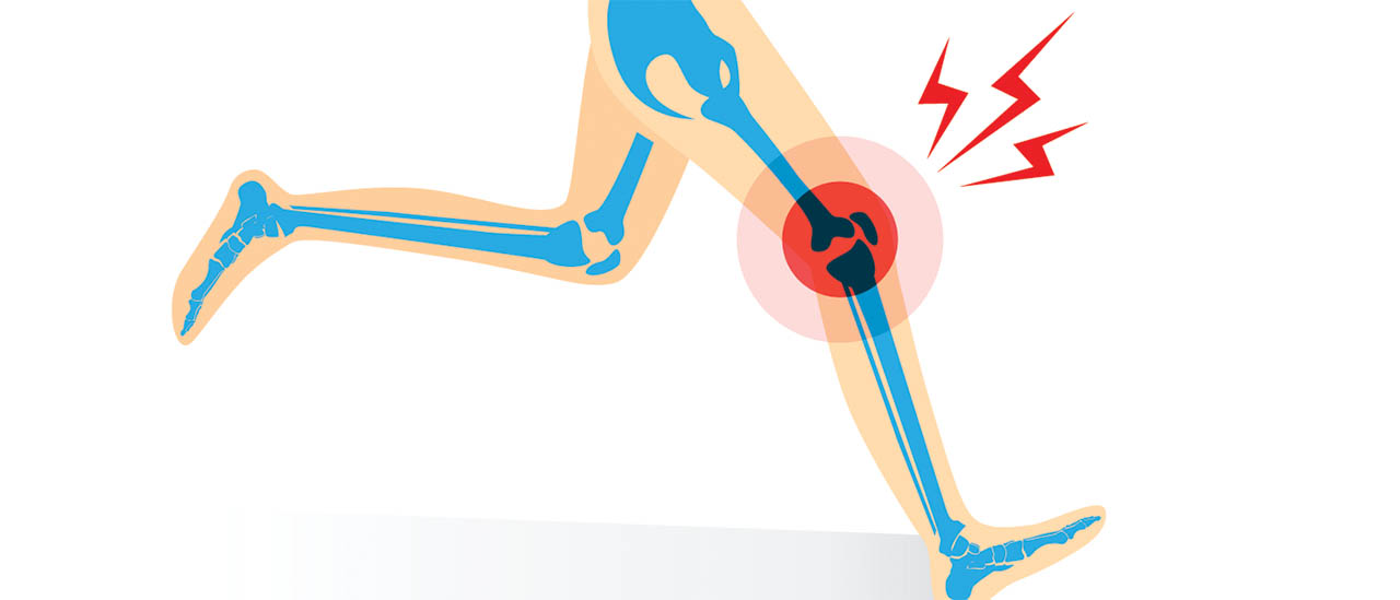 Illustration of runner with knee injury.